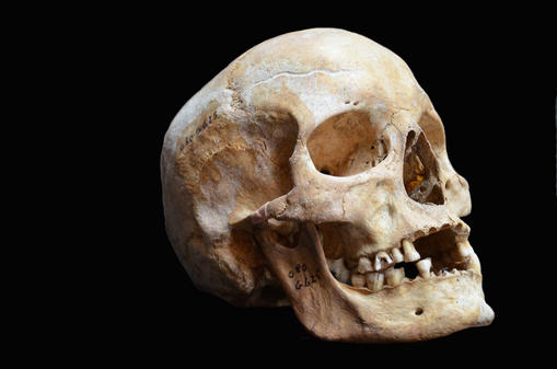 Ermittlungen In Vechta: Knochen und Schädel in Kiesgrube gefunden